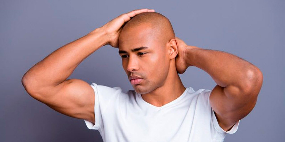 Careca masculina: 4 dicas de como cuidar da careca